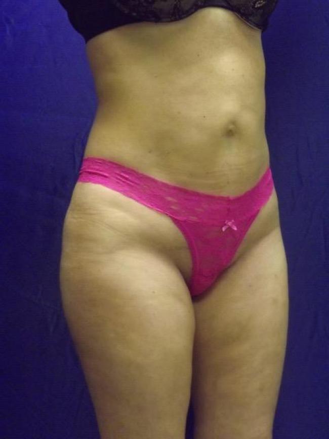 After liposuctionba-8008