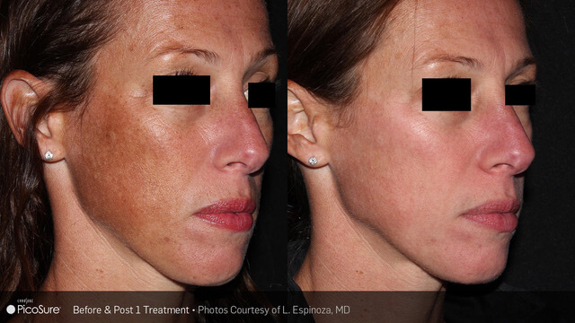 PIcosure-BA-SkinRevitalization-Post1Tx-1-1-1